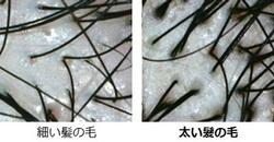 太毛・白髪対策用の育毛サプリの本当の効果を徹底してしらべた結果・・・
